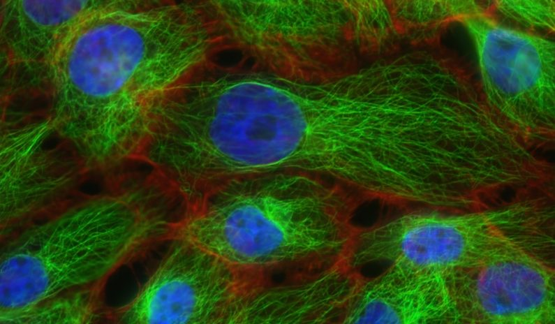 Scientists find a switch to flip and turn off breast cancer growth and metastasis