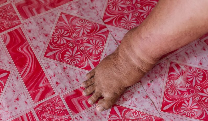 Elephantiasis cases cut by 150 million worldwide since 2000